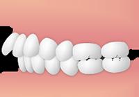 出っ歯の方