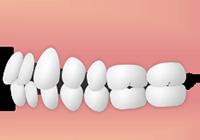 すきっ歯の方